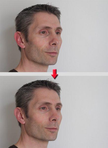 Amélioration d'un portrait sous Photoshop Elements